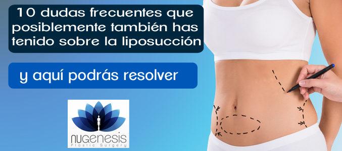 dudas sobre liposuccion