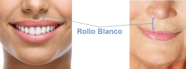 cirugia de labios